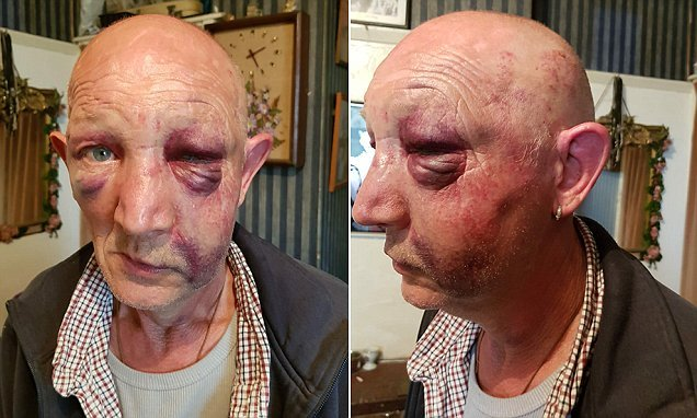 Man with learning difficulties left with broken jaw after attack