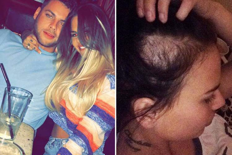 Geordie Shore's Chantelle Connelly claims boyfriend Clark Crawford 'smashed her teeth, cracked her ribs and pulled out her hair'