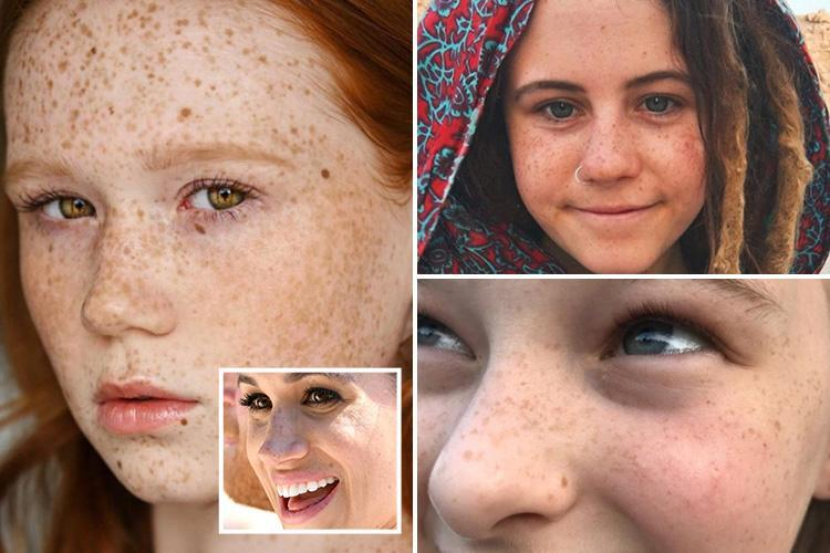 Women are posting beautiful photos of their freckles on Instagram after Meghan Markle embraced hers at the Royal Wedding