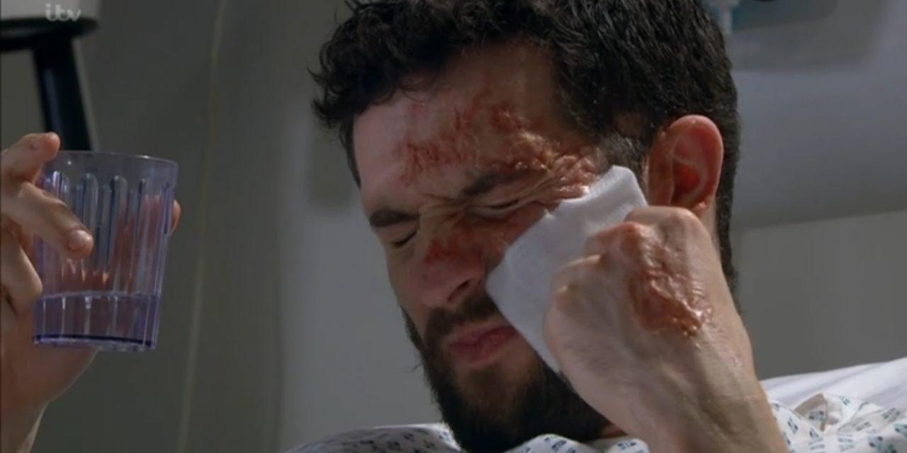 Emmerdale star Michael Parr reveals a real-life connection to Ross's acid attack story