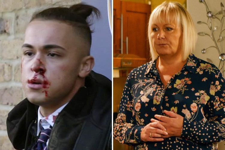 Eastenders will be on TV at a totally different time tonight to avoid Shakil's stabbing plotline clashing with Coronation Street's hour-long episode