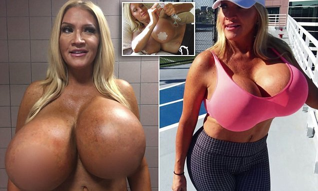 Woman who self-inflated her implants is left with huge lopsided boobs