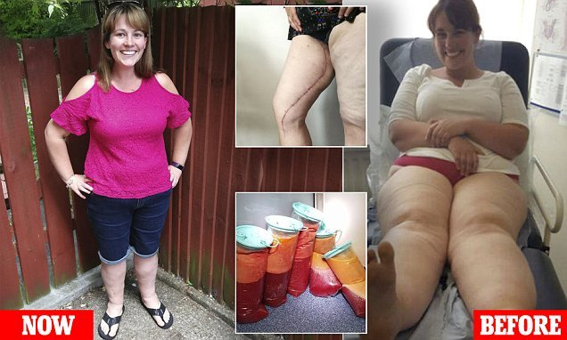 Doctors drain 22 litres of fat from legs of mother