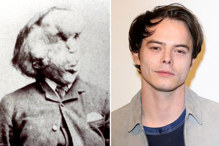Stranger Things star Charlie Heaton to star as the Elephant Man in new BBC1 drama