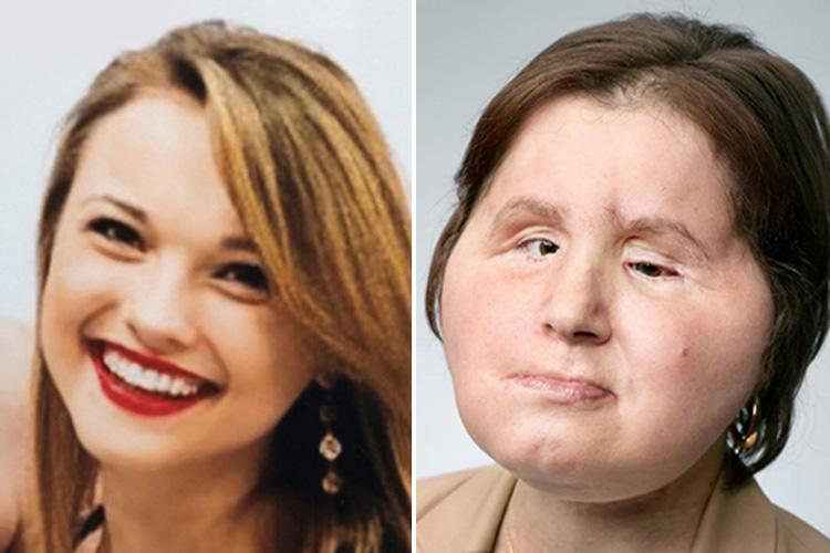 Woman, 22, who shot herself in head in botched suicide bid becomes youngest person ever to receive face transplant after 31-hour op