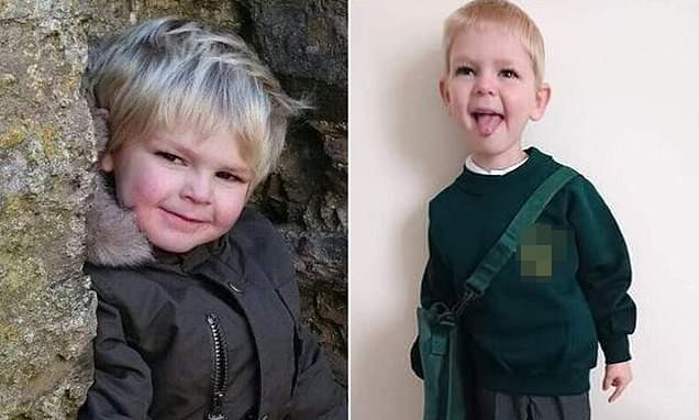 Harrowing picture of meningitis ravaged boy who died aged four