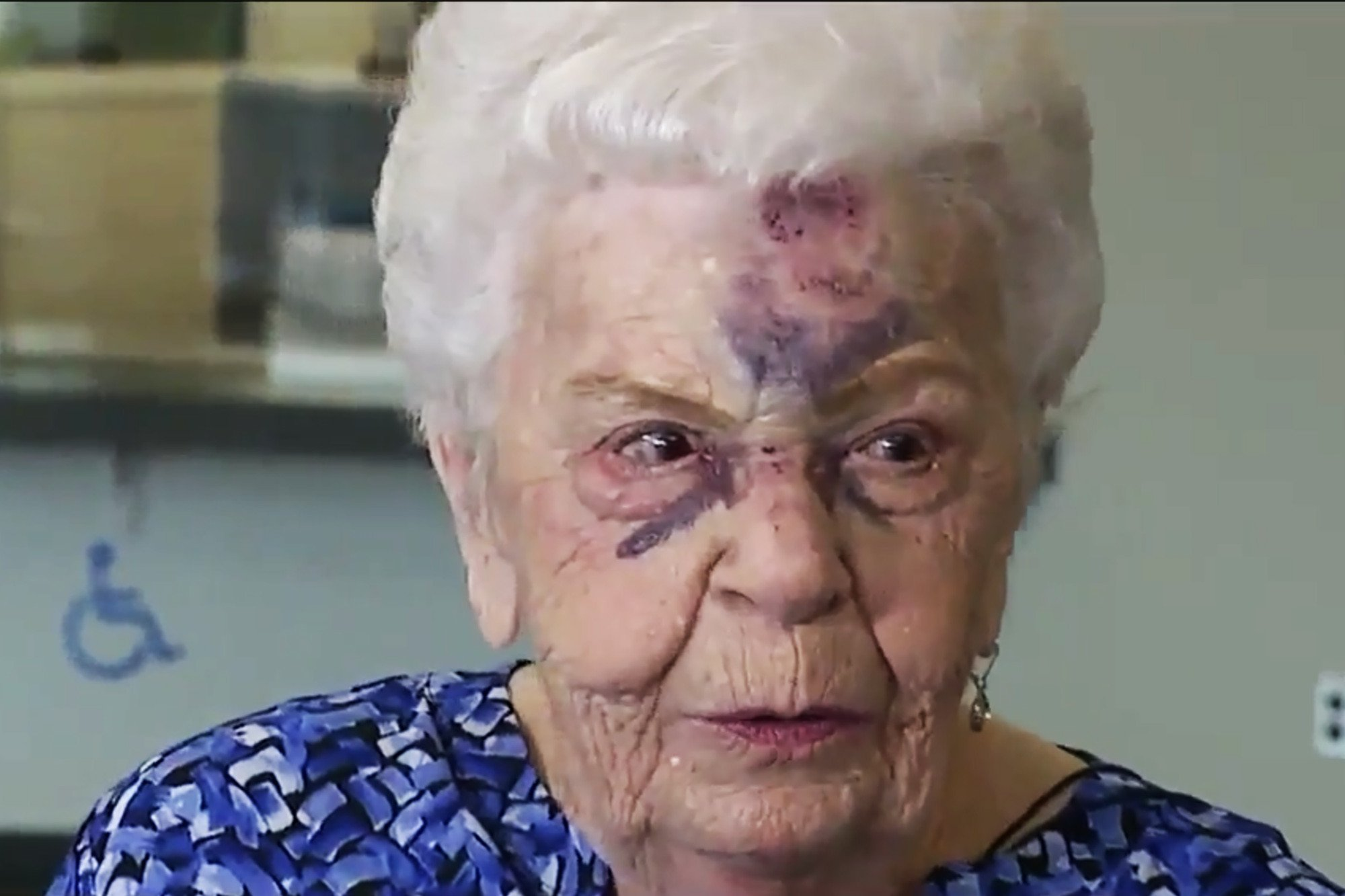 Elderly woman says she tried to fight off carjackers with her cane