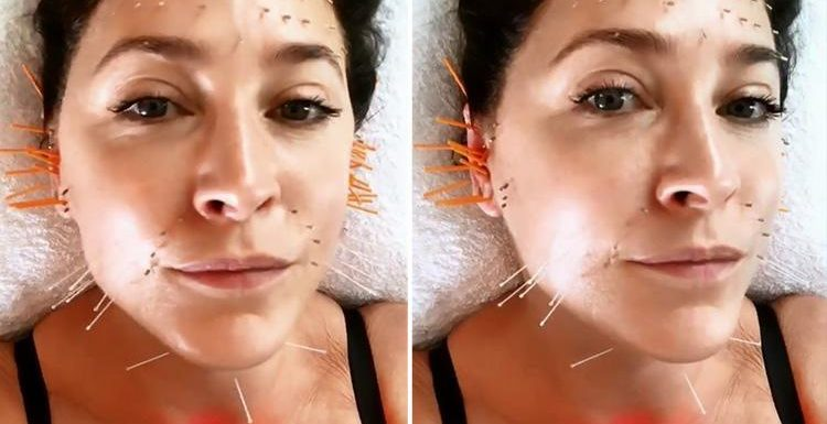 Lisa Snowdon shares painful looking selfie during facial acupuncture session