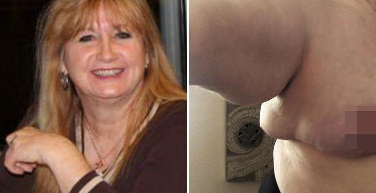 Mum is left with 'THIRD boob' under her armpit after botched boob reduction op
