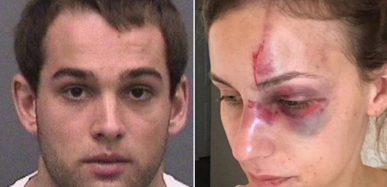 Motocross champ under fire after ex shares photos of her battered face