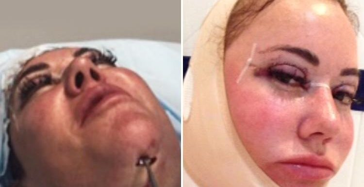 Lisa Appleton goes under the knife in Turkey to remove double chin after UK doctors refused to do the surgery