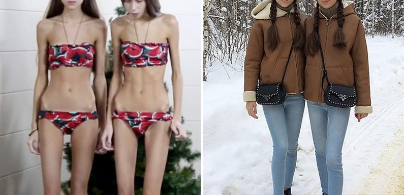 Teen catwalk stars turned into anorexic 'living corpses' after being 'told to lose weight' by modelling school show off remarkable recovery