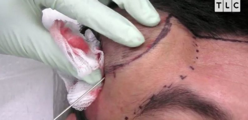 Dr Pimple Popper removes baseball-sized tumour from man's head