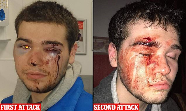 Autistic teenager, 19, is battered with knuckleduster in second attack