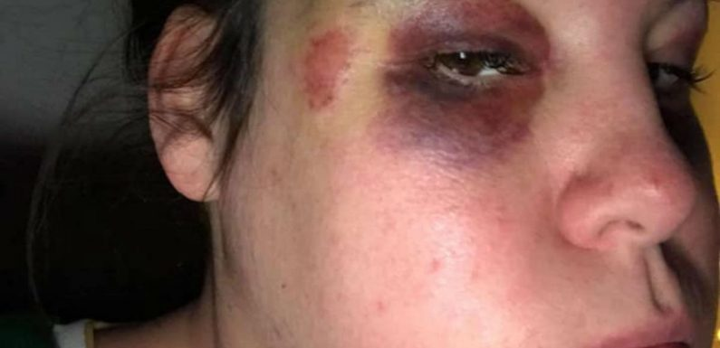 Domestic abuse victim shares shocking photos as warning as ex freed from prison