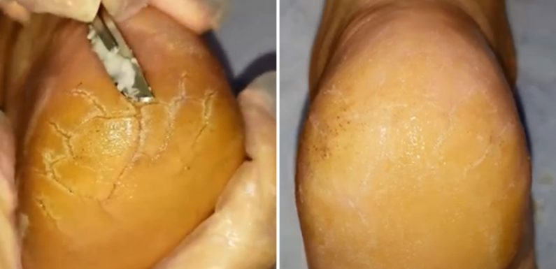 Stomach-churning video shows podiatrist hacking stubborn scaly skin from patient's feet