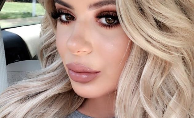 Brielle Biermann: See How Totally Ugly I Was Before Lip Fillers!