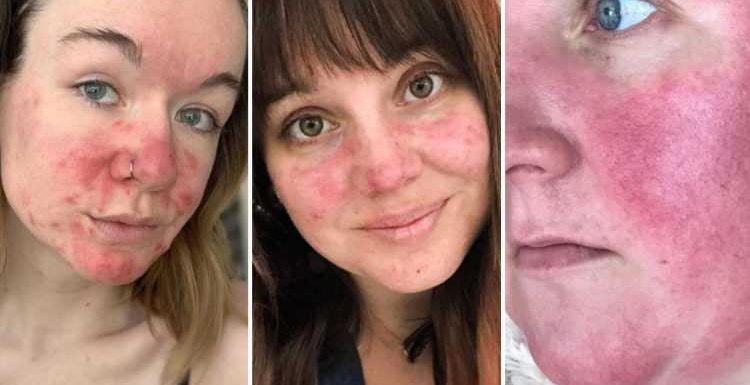 Women share powerful make-up free selfies using #RosaceaNoFilter to show the realities of living with a skin condition