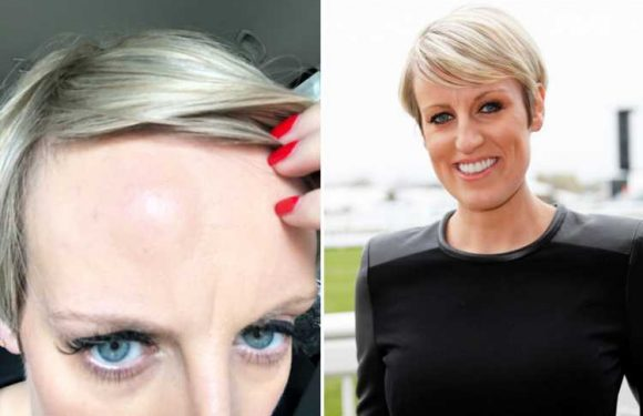 Pregnant BBC star Steph McGovern rushed to see a doctor after waking up with golf ball-sized spider bite on her forehead – The Sun