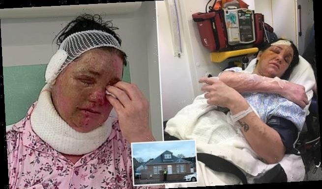 Mother scarred in acid attack fears for her life as thugs ram her car