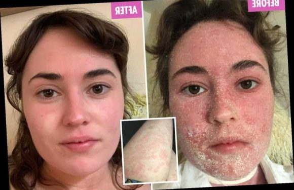 The only way to 'cure' my agonising eczema was to STOP treatment – after I suffered horrendous withdrawal – The Sun