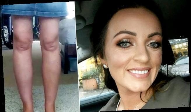 Woman shows off her kneecaps that look like Phil and Grant Mitchell
