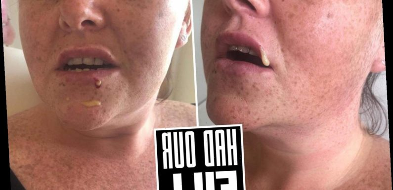 My lips exploded with pus after £60 botched fillers pierced a blood vessel and left me permanently disfigured – The Sun