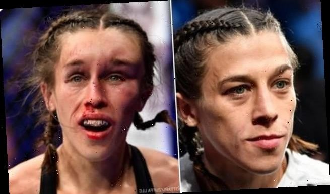 Pics show battered and bruised UFC fighters horrific facial injuries