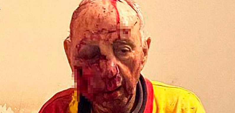 Elderly man, 84, left covered in blood and fighting for life after savage attack