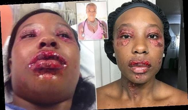 Nurse compared to a ZOMBIE due to skin condition caused by her period