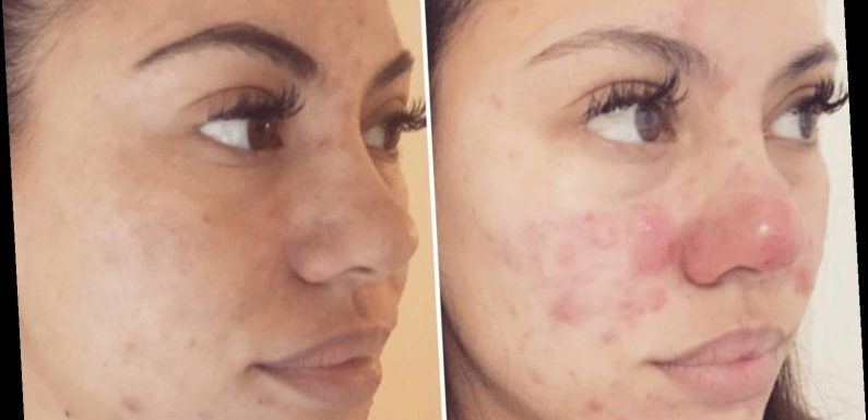 Acne sufferers rave over 'life-changing' vitamins which cleared their skin in just ONE month