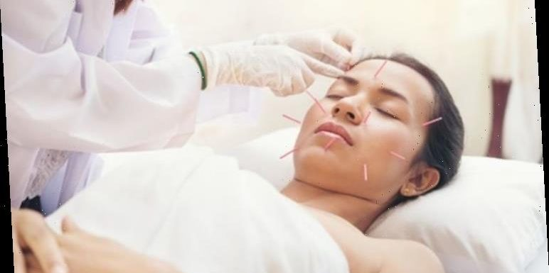 Acupuncture meaning: What is acupuncture good for?