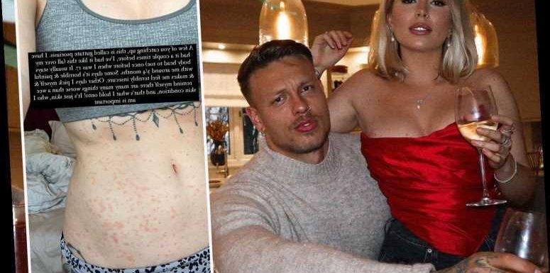 Love Island's Olivia Bowen shows off painful psoriasis on her stomach after being trolled over skin condition