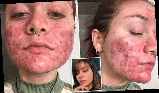 Woman whose acne made her suicidal finds 'life-changing' treatment