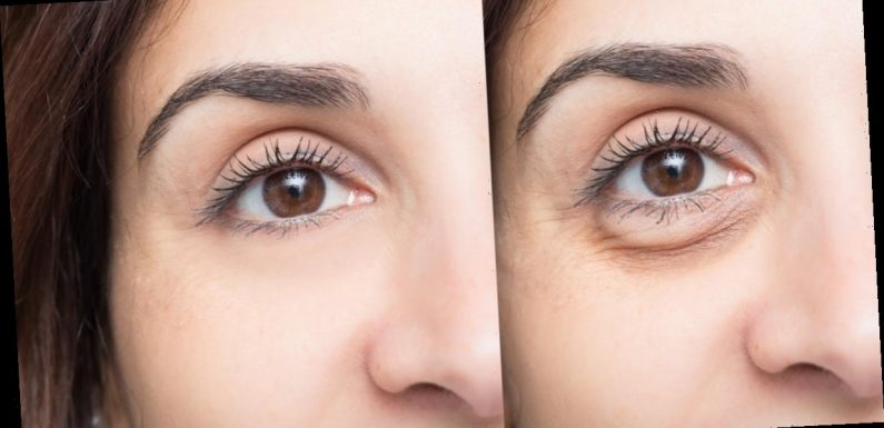 This De-Puffing Eye Balm Seriously Works Like an Instagram Filter