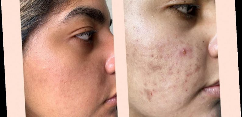 You Could Start Seeing Results From This Maskne Set After Just 1 Night