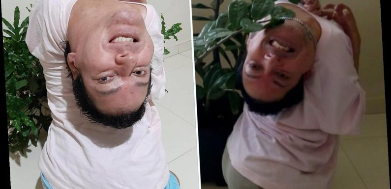 Brave Brazilian man with an upside-down head reveals his Covid nightmare as he fears virus would 'kill him'