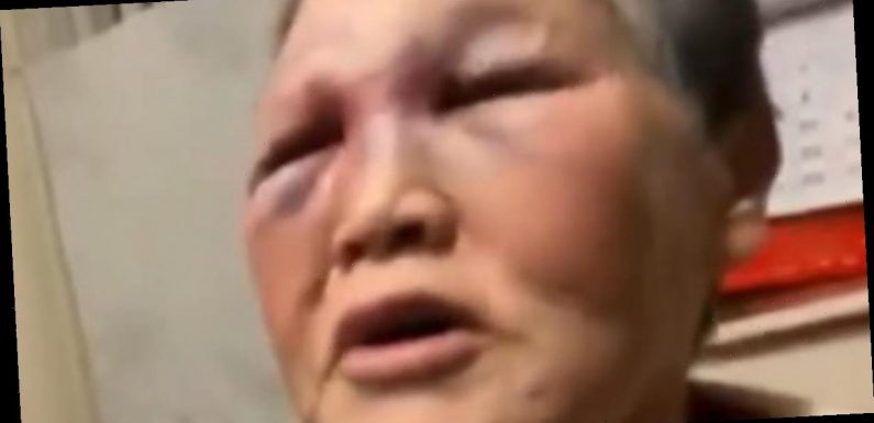 Elderly Asian woman who fought off attack in San Francisco to donate nearly $1 million in donations