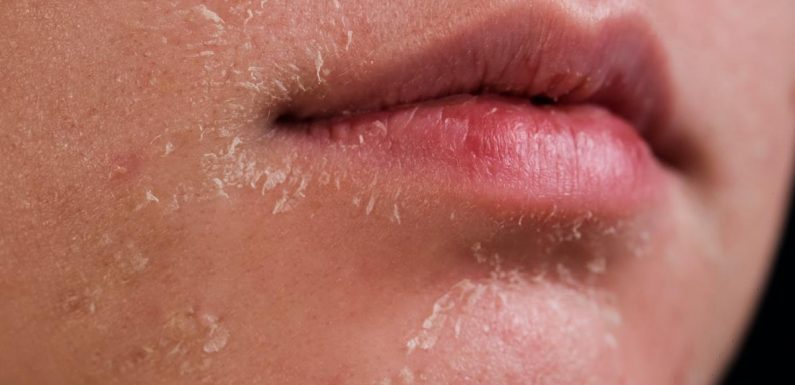 Dry, Flaky Skin? This Cleanser Has a Special Ingredient That Retains Moisture