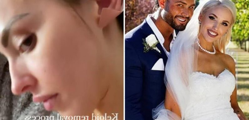 Married At First Sight Australia's Elizabeth Sobinoff reveals bandaged skin as she gets scar tissue removed from breasts