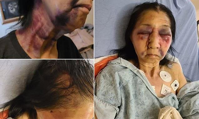 Woman, 70, 'attacked after being mistaken for an Asian-American'