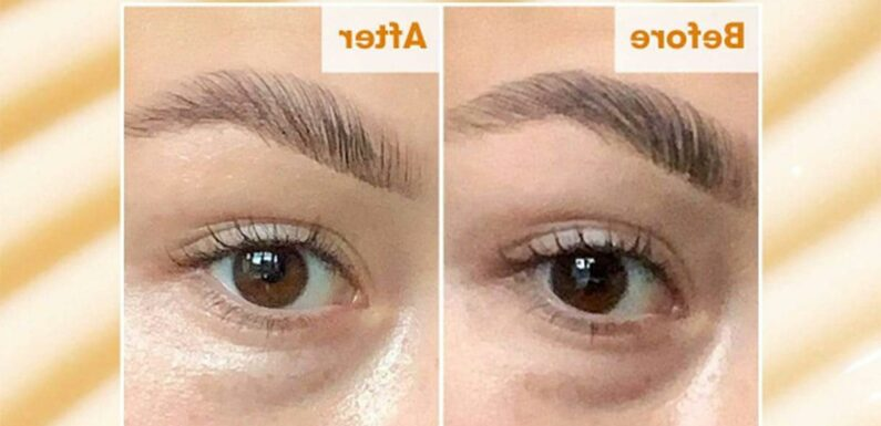 This Eye Cream Could Visibly Reduce Dark Circles in Just 7 Days