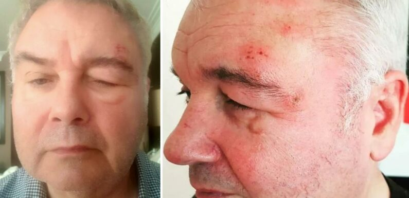 This Morning's Eamonn Holmes left looking unrecognisable after horrifying shingles battle