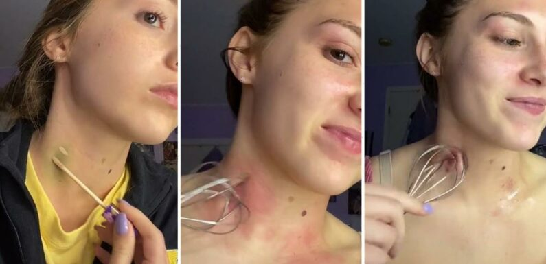 Woman reveals how you can get rid of a love bite using a WHISK and people have been left baffled