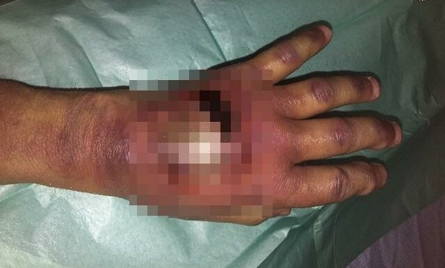 Gran left with gaping wound on hand after 'botched' hospital injection led to massive blister