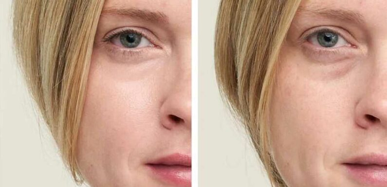 This Under-Eye Concealer May Instantly Make You Look 10 Years Younger